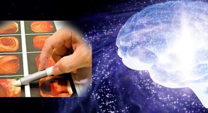 当院は、病変の早期発見を目指す人工知能のAI内視鏡研究に協力しています